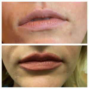 Lip Enhancement at Bella Viságe Lakeland