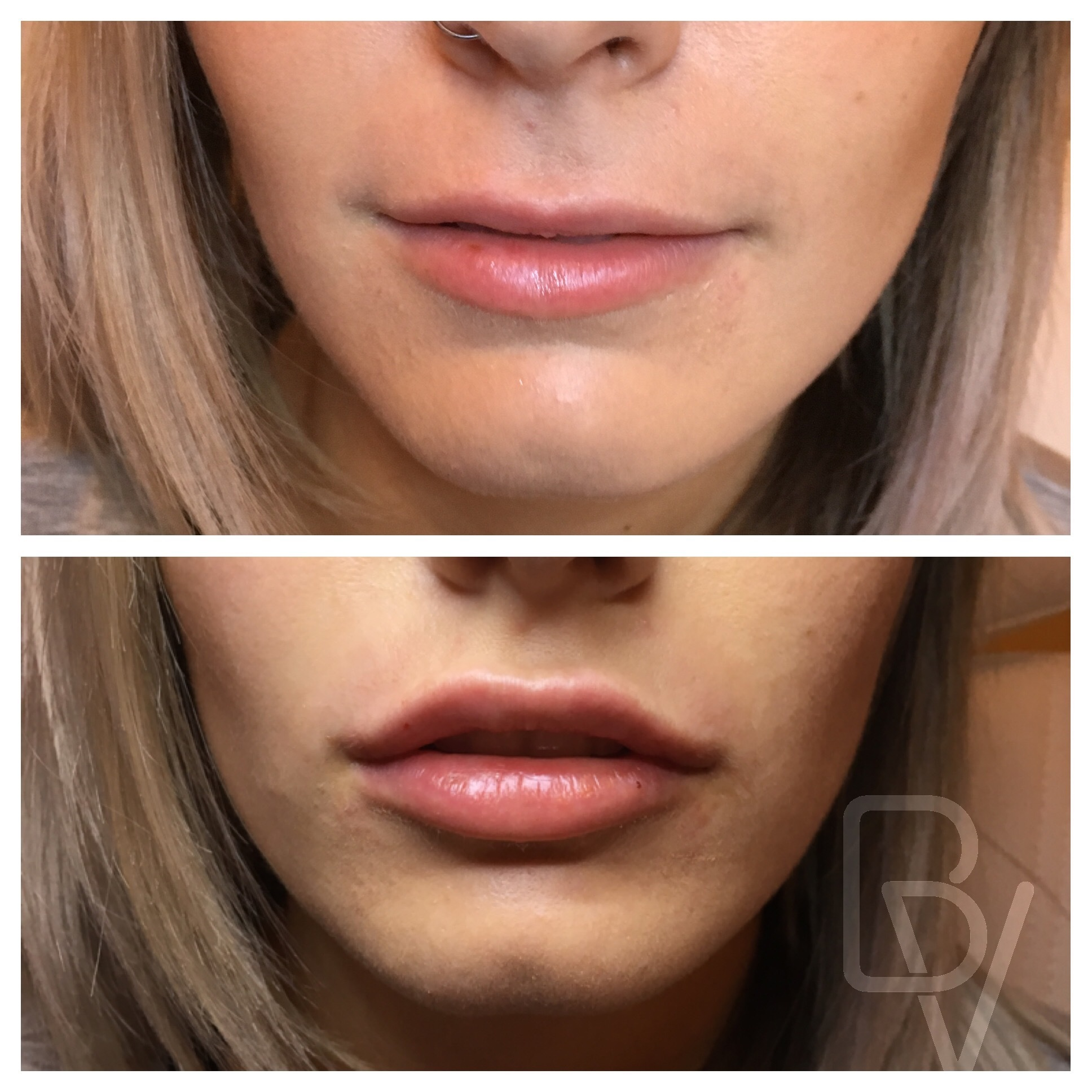 Before And After Photos Of Bella Visage Clients Lakeland