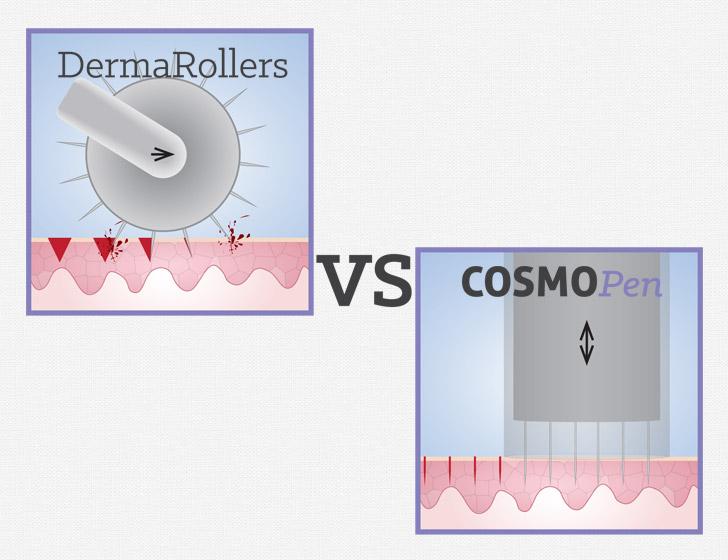 cosmopen-microneedling-VS-roller2