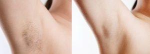 Laser Hair Removal armpits