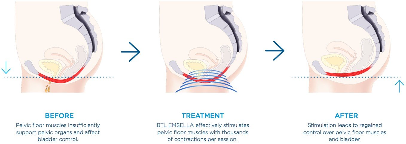 Treatment for Urinary Incontinence Lakeland